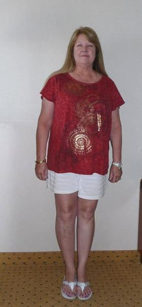 """Day before surgery weight 221; height 5'-7.5"""""""