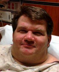 Surgery day January 10, 2011