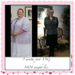 9 month Surgiversary and 140# down