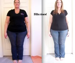 Before and 6 weeks post surgery 50lbs down