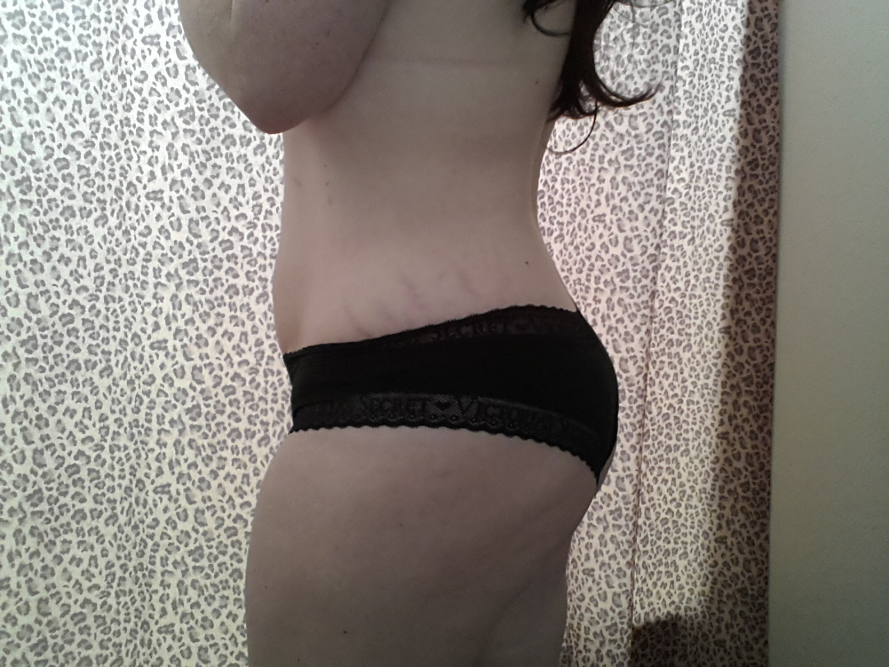 side view-stretch mark on hip, and butt/thigh dimples