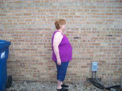 E.  Miss Mac before gastric sleeve surgery