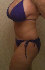 #_Post Tummy Tuck