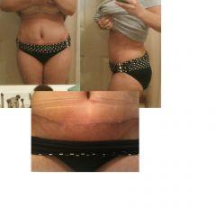tummy week 4