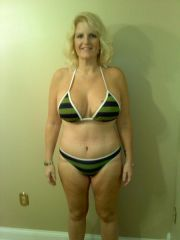 12/03/09 2 weeks post op from plastic surgery.. thigh lift in February 2010!