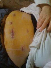 Post surgery incisions DAY OF