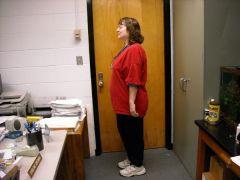 150 lb weight loss