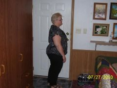 July 27 2010 6 weeks out - 15 lbs lost since surgery - 45 lbs total!