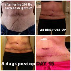 collage tummy 4 pics