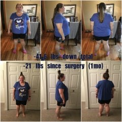 1mo post-op collage