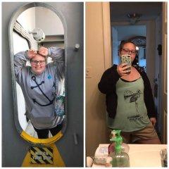 Feb. 2018 (left) surgery Sept. 12, 2018 Sept. 23, 2018 (Right)