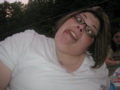 Before and After Gastric Bypass Photos