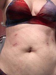 Scars at 6 weeks