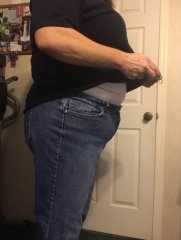 Post Gastric Sleeve