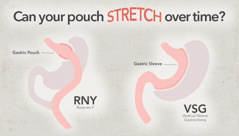 pouch-size-stomach-stretch-after-bariatric-surgery-760x435.jpg