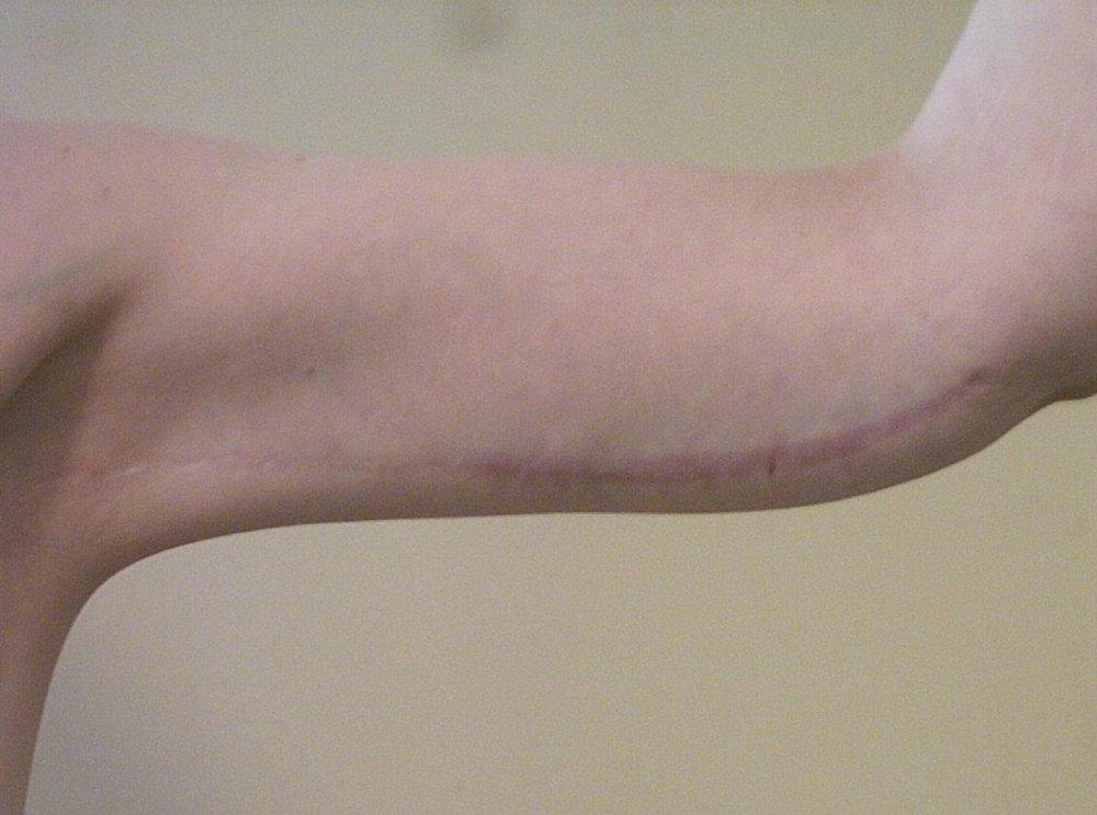 Left Arm Scar 260611.jpg