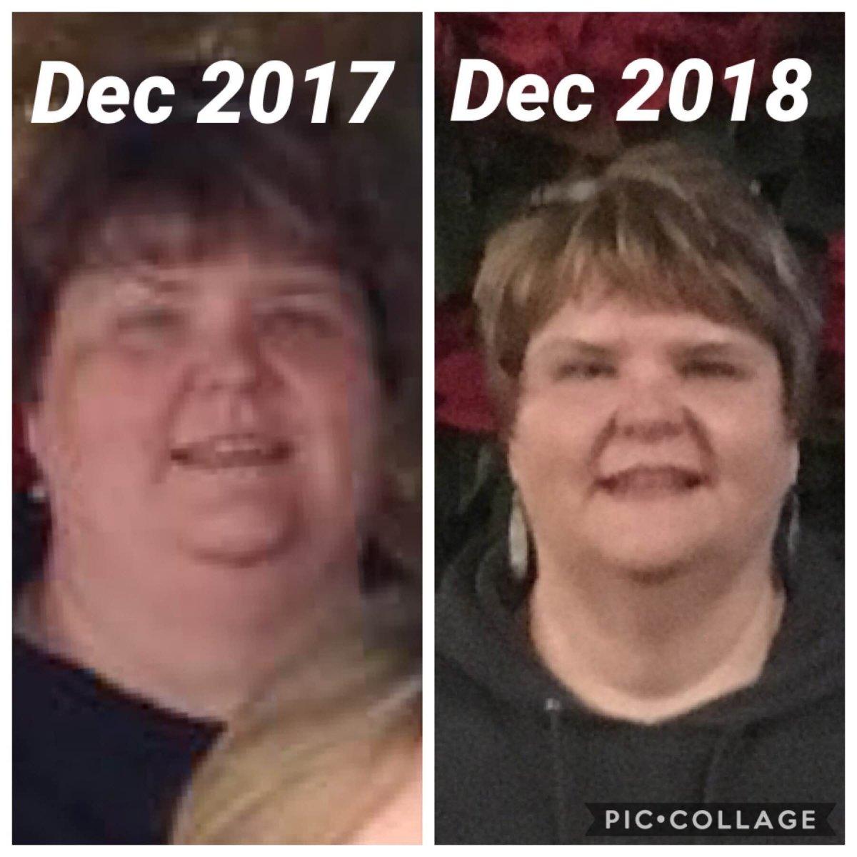 2 months post op