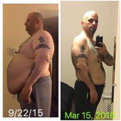 6 months post VSG