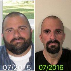 1 year post VSG