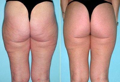 buttock_lift_.jpg