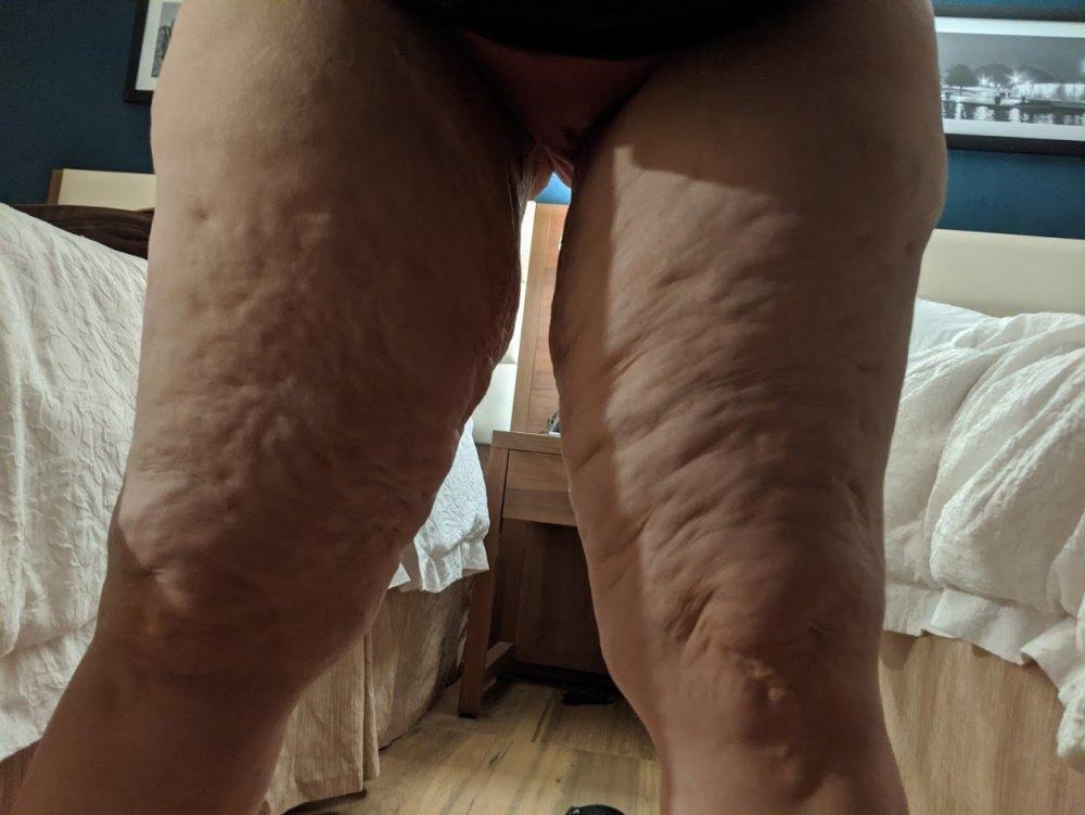legs before2.jpg