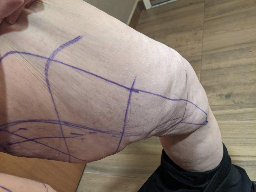 legs before.jpg