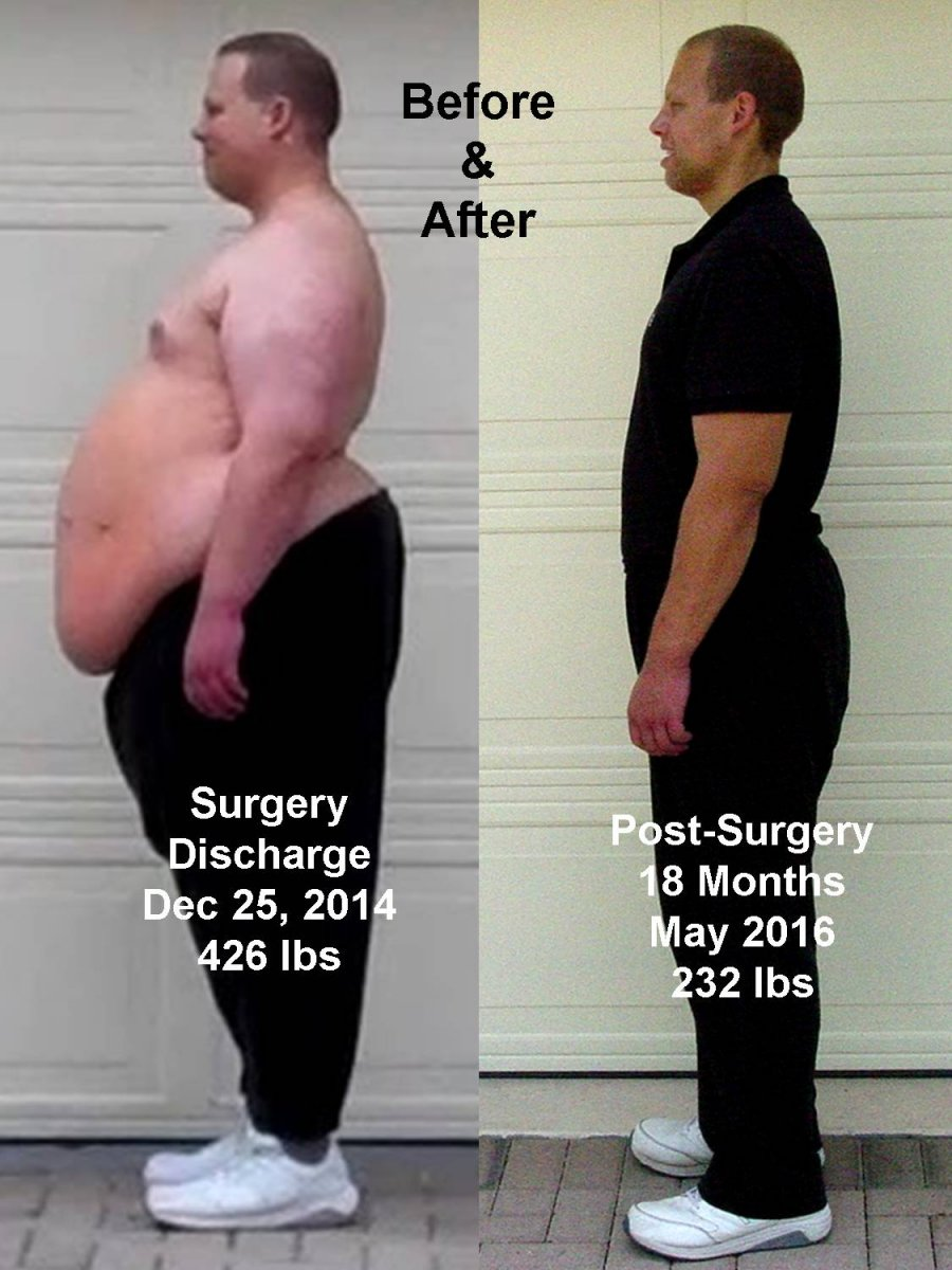 BEFORE & AFTER 4.jpg