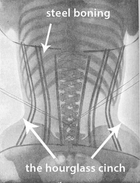 how-corset-works-xray.thumb.jpg.ce7957e12222b675d50ad3d5edd3fbab.jpg