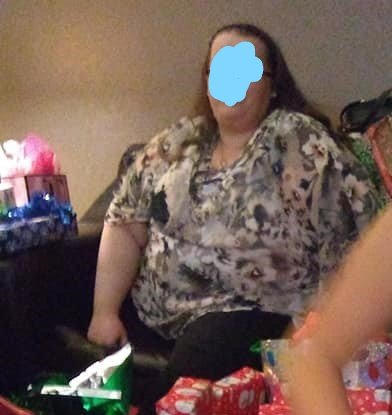 Christmas 2018 me before surgery.jpg