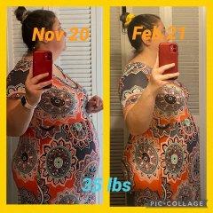 Before surgery progress Nov. 2020 to Feb 2021