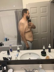 Before and After Gastric Sleeve Photos